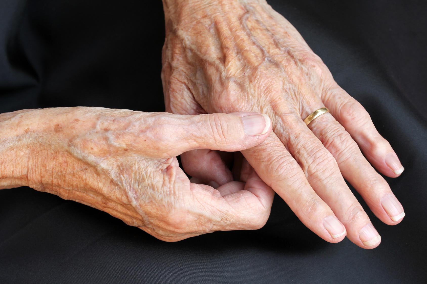 arthrose-zwei-haende-goldener-ring-senioren-altersfelcken